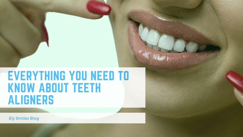 Everything you need to know about teeth aligners