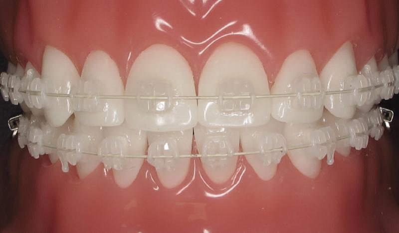 ceramic braces being worn